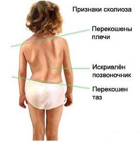 как определить искривление - внешние признаки сколиоза